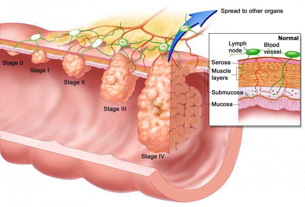 anal kanserin evreleri